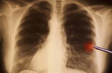 """可惜:Ⅲ期肺癌也可治愈,但很多人放弃了这种""""老办法"""""""