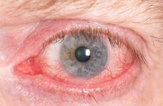 7岁女孩被同学往眼里塞纸片!如何保护脆弱的眼睛?