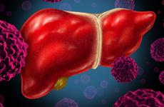 国产药多纳非尼突破性肝癌一线治疗试验结果闪耀ASCO