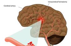 Circulation:减少微动脉的过渡肌化可预防自发性深部脑出血