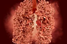国内肺癌患者获得首张第三代口服靶向药物处方