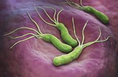 成功根除幽门螺杆菌的关键是?曾