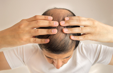 脱发有什么原因
