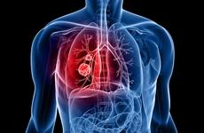 豪森药业获批全球第二个三代EGFR-TKI创新药阿美乐(甲磺酸阿美替尼片)