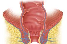 肛门癌呈上升趋势,尤其是女性,她们应该接受筛查吗?