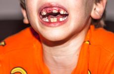乳牙总要换,坏了不用治?摒除儿童口腔护理误区