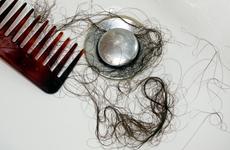 脱发严重的原因是什么?烫发染发也是原因之一