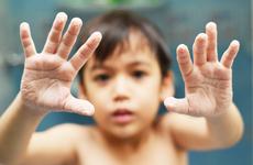 如何判别宝宝是否患上甲沟炎?