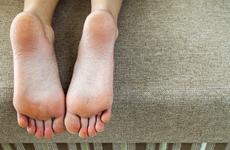 皮肤清洁的重要性有哪些