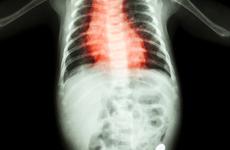 23岁女孩心脏停搏3天救活!出现这几种情况,医生建议你去查个心电图……