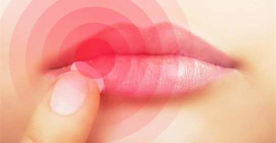 为什么一到冬天嘴唇就起皮?你可能连润唇