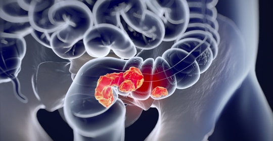 """研究证实:吃进去的脂肪,慢慢""""喂饱""""癌细胞!这样做降低风险"""