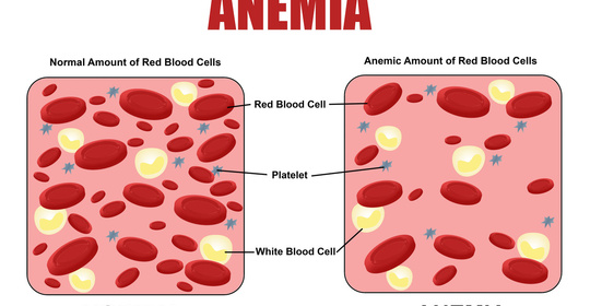 缺乏叶酸或维生素B12,当心贫血找上门