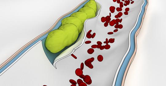 血栓能在早期发现,这个指标很重要!