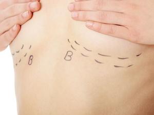23万整出四个胸?FDA警告,隆胸增加淋巴瘤风险!