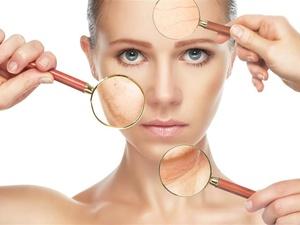脸上有色斑,该怎么办?皮肤科医生给出4个方法,简单实用