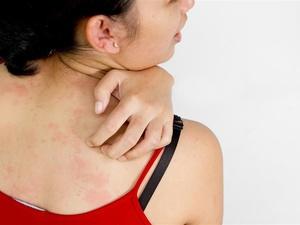 常见的荨麻疹过敏原有哪些?五个因素逐一讲解