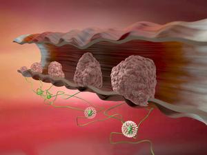 女子CT检查疑患结肠癌,绝望选择轻生,结肠癌的症状有哪些?