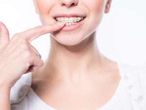 箍牙后真的能变瘦变美?关于箍牙的真相,你想知道的都在这里