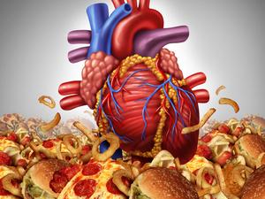 高膽固醇血癥,你知道多少
