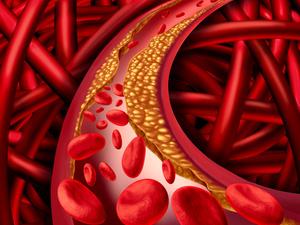 血栓有哪些症状最为明显