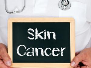 皮肤溃疡反复不愈,小心皮肤癌!