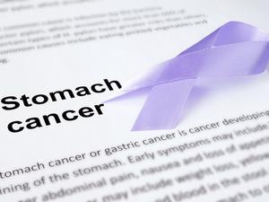 哪种癌症,遗传的可能性最大?医生指出7种,对照看看