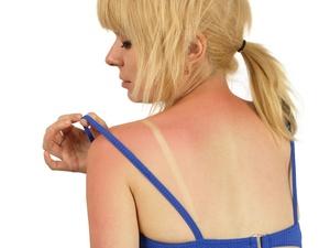 被紫外线晒伤,有什么症状?各级晒伤表现不同
