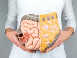 """结肠""""变黑"""",是肠癌前兆吗?消化内科医生给出解释"""