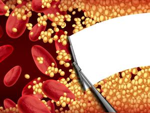 他汀治療基礎上 LDL-C降幅是逆轉粥樣硬化斑塊的決定因素