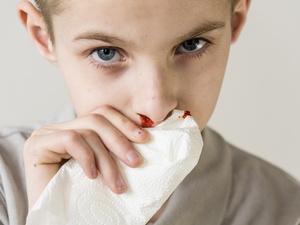 这些症状看似平常,但很可能是白血病前兆!