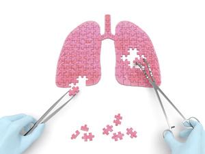 肺炎饮食注意