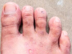 夏天來了,你的腳氣犯了嗎?腳氣來襲該怎么辦?