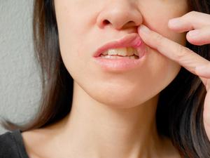 复发性口腔溃疡怎么治?口腔科医生这次说得很全面!