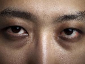 经常玩手机易疲劳,建议多眨眼睛