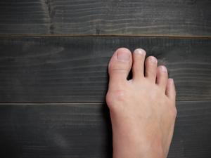 年轻男子一足生9趾,盘点常见的足部畸形
