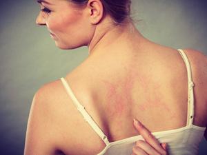 荨麻疹还分急性子和慢性子?
