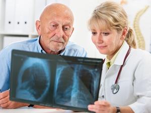 肺部肿瘤的症状