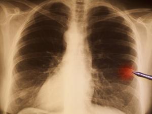 不吸烟为什么也会得肺癌?这些都是致癌因素,要警惕!