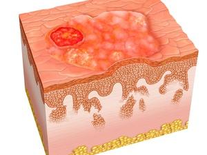 火山喷发致多人烧伤,新西兰购120万平方厘米皮肤用于治疗