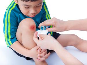 小孩子调皮容易受伤,怎样才不会留疤?