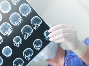 脑瘤症状有哪些不舒服