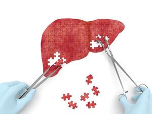 肝上长瘤子到底是怎么回事?