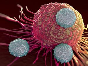 提醒:人人都怕癌,你知道癌细胞最怕什么?就怕你做5件事