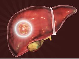 仑伐替尼中国上市:适于我国晚期肝癌患者的分子靶向药物来了