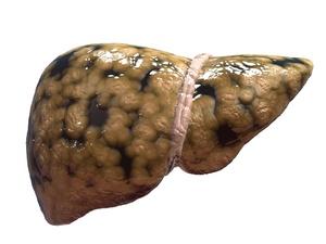 出现脂肪肝症状,