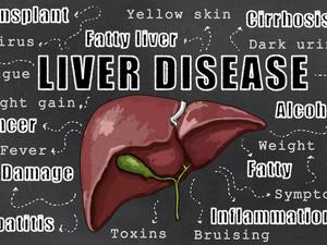 四类慢性肝炎,其