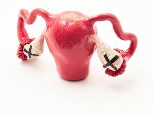 多囊卵巢可以自愈吗?除了服药治疗,这些习惯都要改变