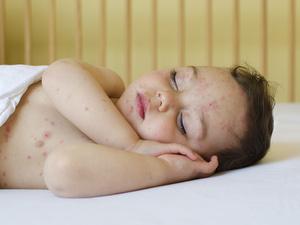 这些关于水痘的误区,你都知道吗?