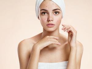 为什么有的人是敏感肌肤?